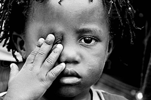 Child with River Blindness